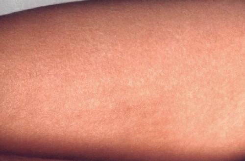 pediatric rashes